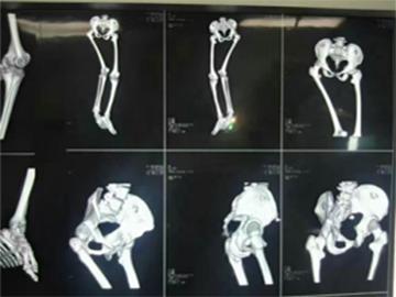 髋关节重建术的下肢多发畸形矫正手术