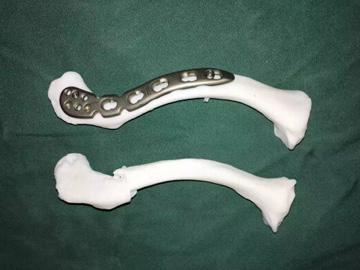"""3D打印""""镜像""""模型辅助设计下微创治疗锁骨骨折"""
